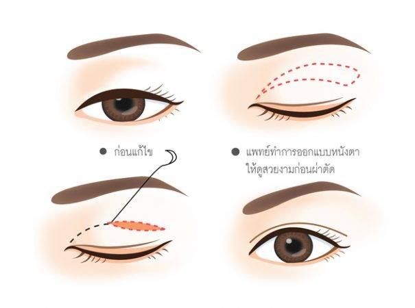 กล้ามเนื้อตาอ่อนแรง-18