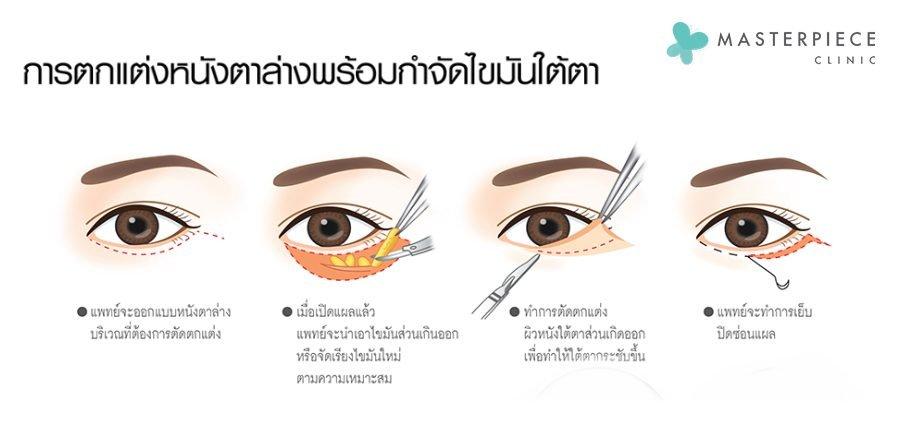 ตัดหนังตาล่างและกำจัดไขมันใต้ตา