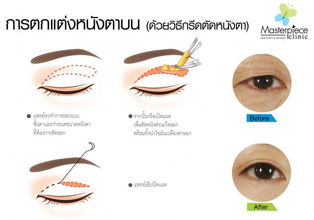 ตัดหนังตา-1030x72202