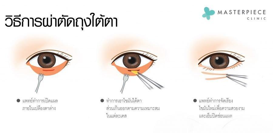 วิธีผ่าถุงใต้ตา