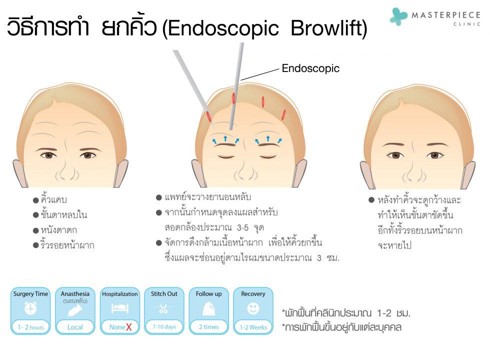 การผ่าตัดโดยใช้กล้อง endoscopic