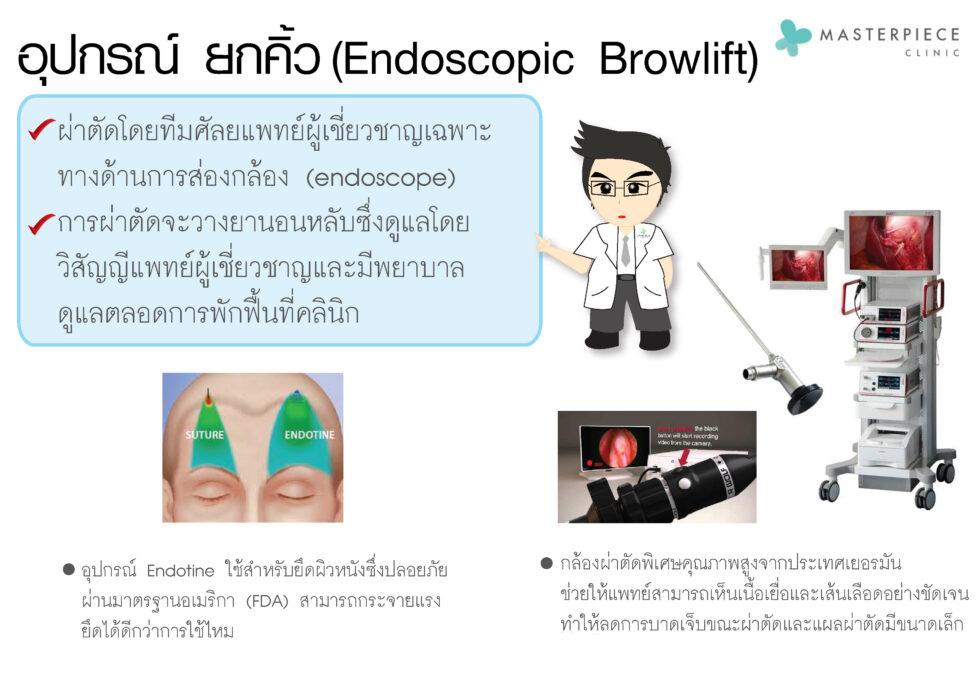 การยกคิ้วเทคนิค (Endoscopic Brow Lift)