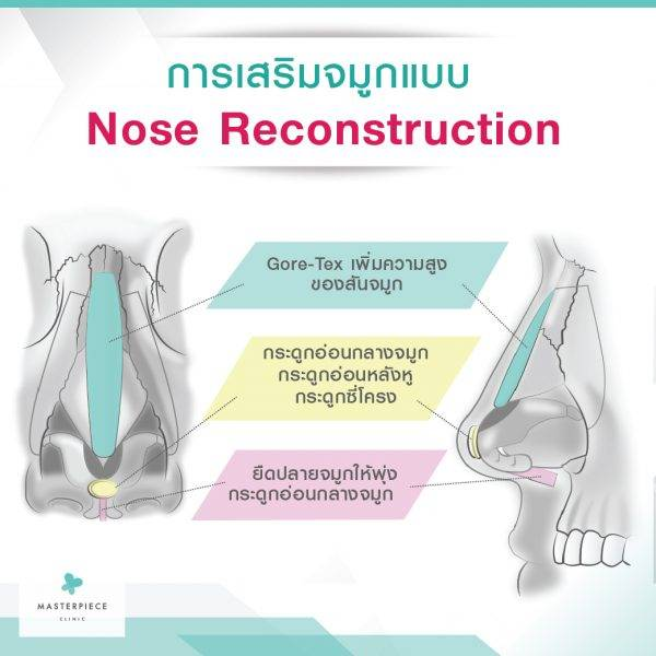 Nose_Reconstruction-01