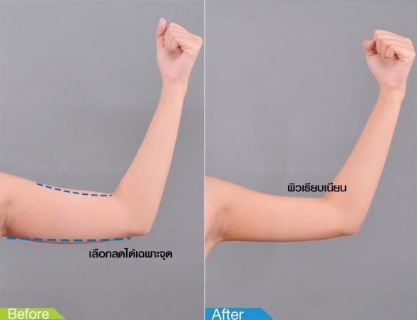 B&A-Arm1-Edit