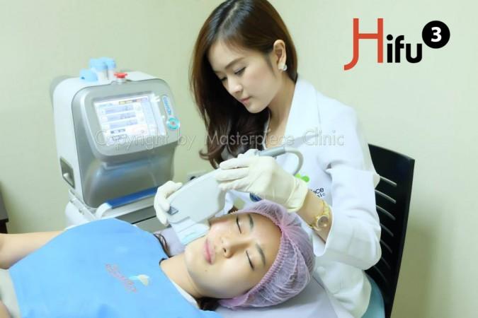 HIFU3-1
