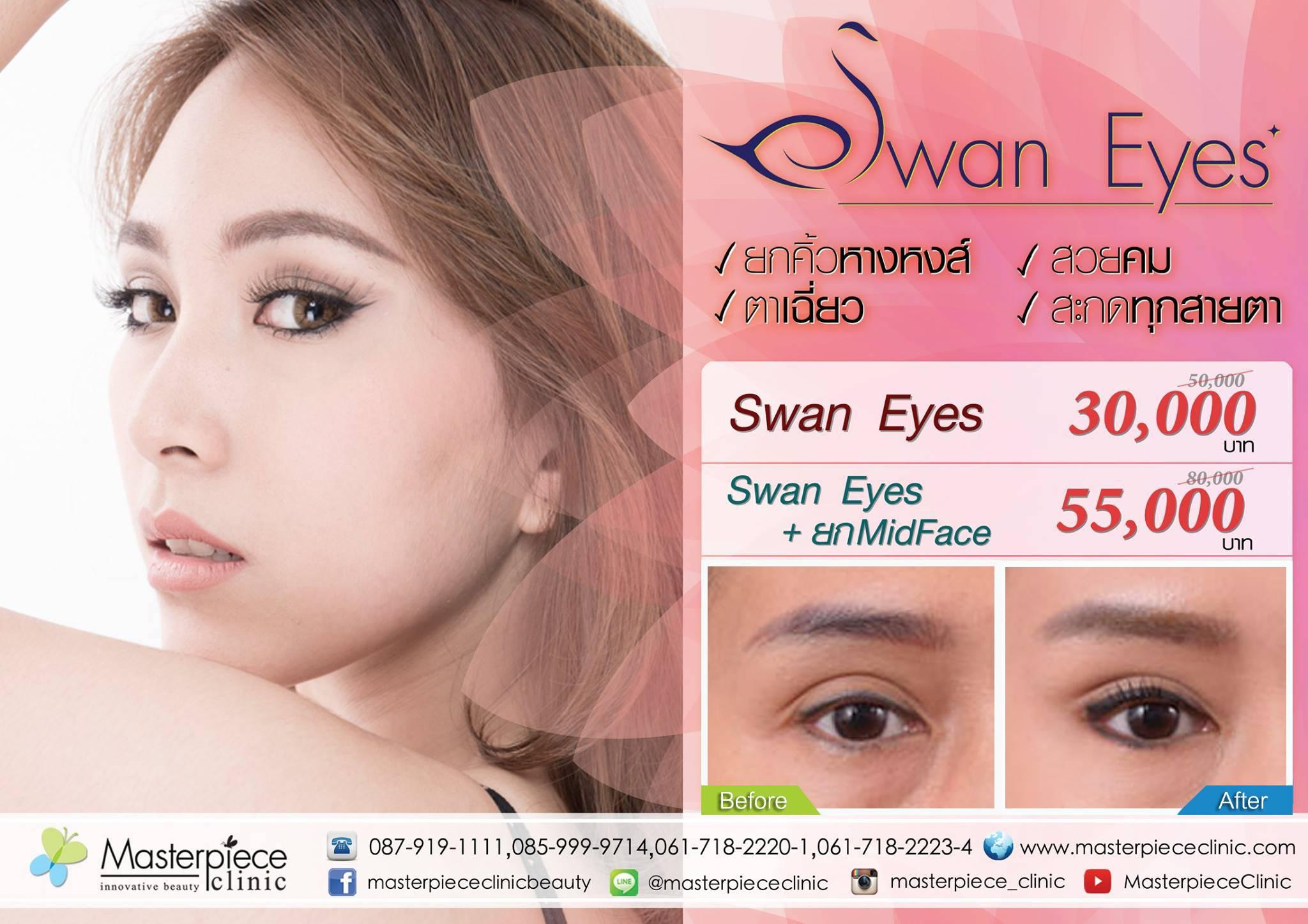 ให้ตาสวยอย่างมีระดับแบบ Swan Eyes ด้วยเทคโนโลยีใหม่ จากมาสเตอร์พีซ คลินิก