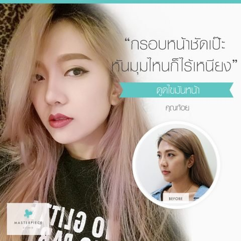 Template Before & After (ฟรุ้งฟริ้ง) S 1040×1040 Px