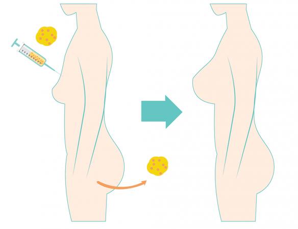 Fat Transfer เติมเต็มไขมันเพิ่มความอวบอิ่ม คืนความอ่อนเยาว์ - MasterPiece Clinic by Dr.Sae