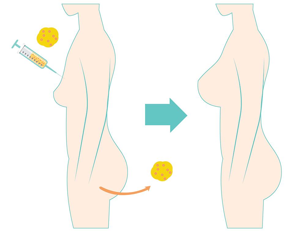 ศัลยกรรมเติมเต็มด้วยเซลล์ไขมันตัวเอง Fat Transfer