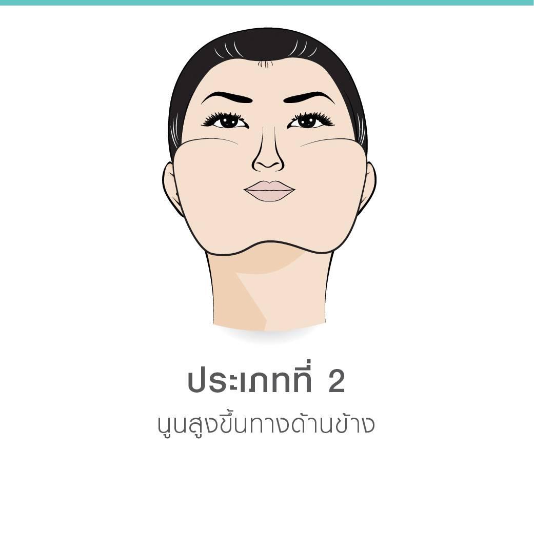 ศัลยกรรมลดโหนกแก้ม(Cheekbone Reduction Sugery)