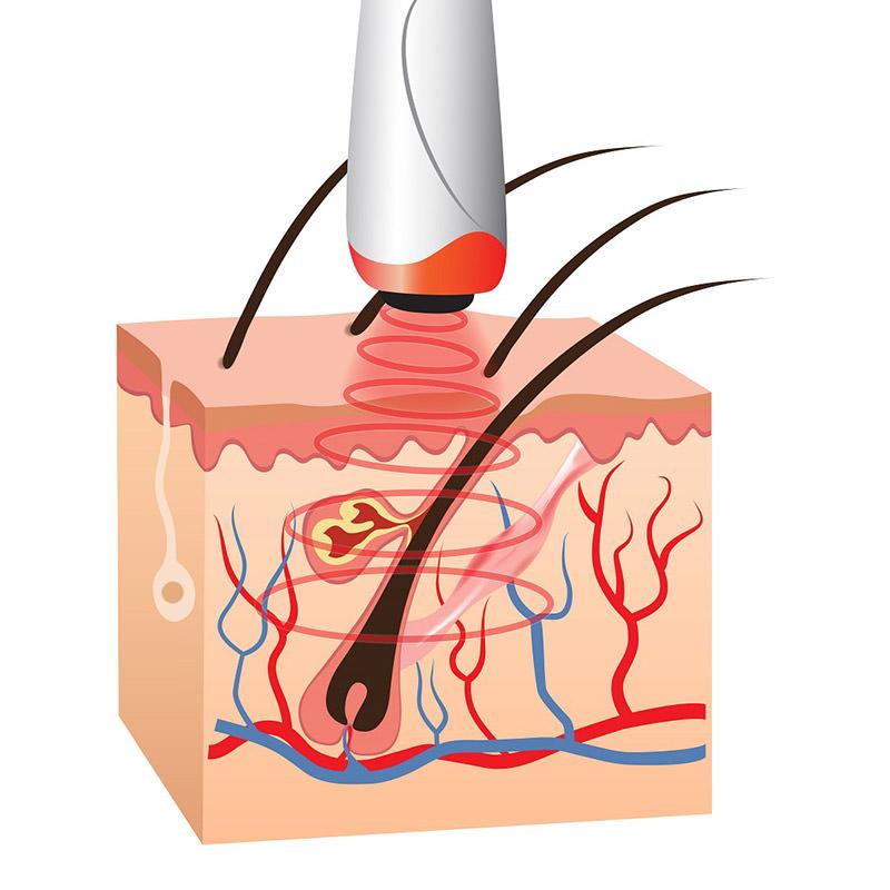 Dermis Cool Hair Treatment