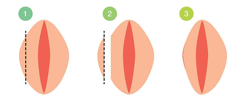 ผ่าตัดตกแต่งแคมนอก LABIA MAJORA REDUCTION