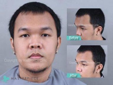 ปลูกจอน ยาวทันใจด้วยเทคนิค Long Hair (แบบ FUT) – คุณต่าง