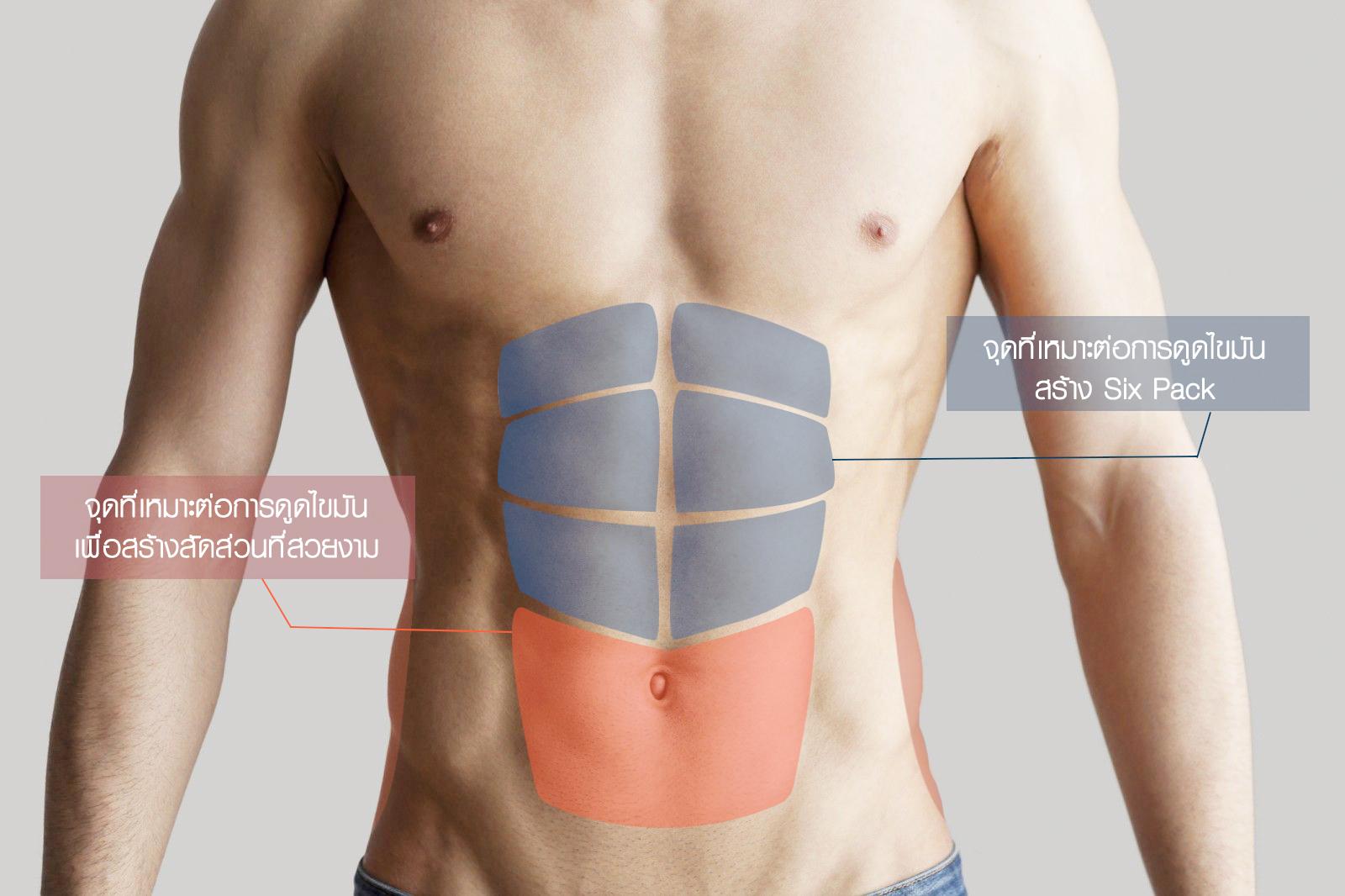 บริเวณที่เหมาะต่อการ ศัลยกรรมดูดไขมันสร้างซิกแพค