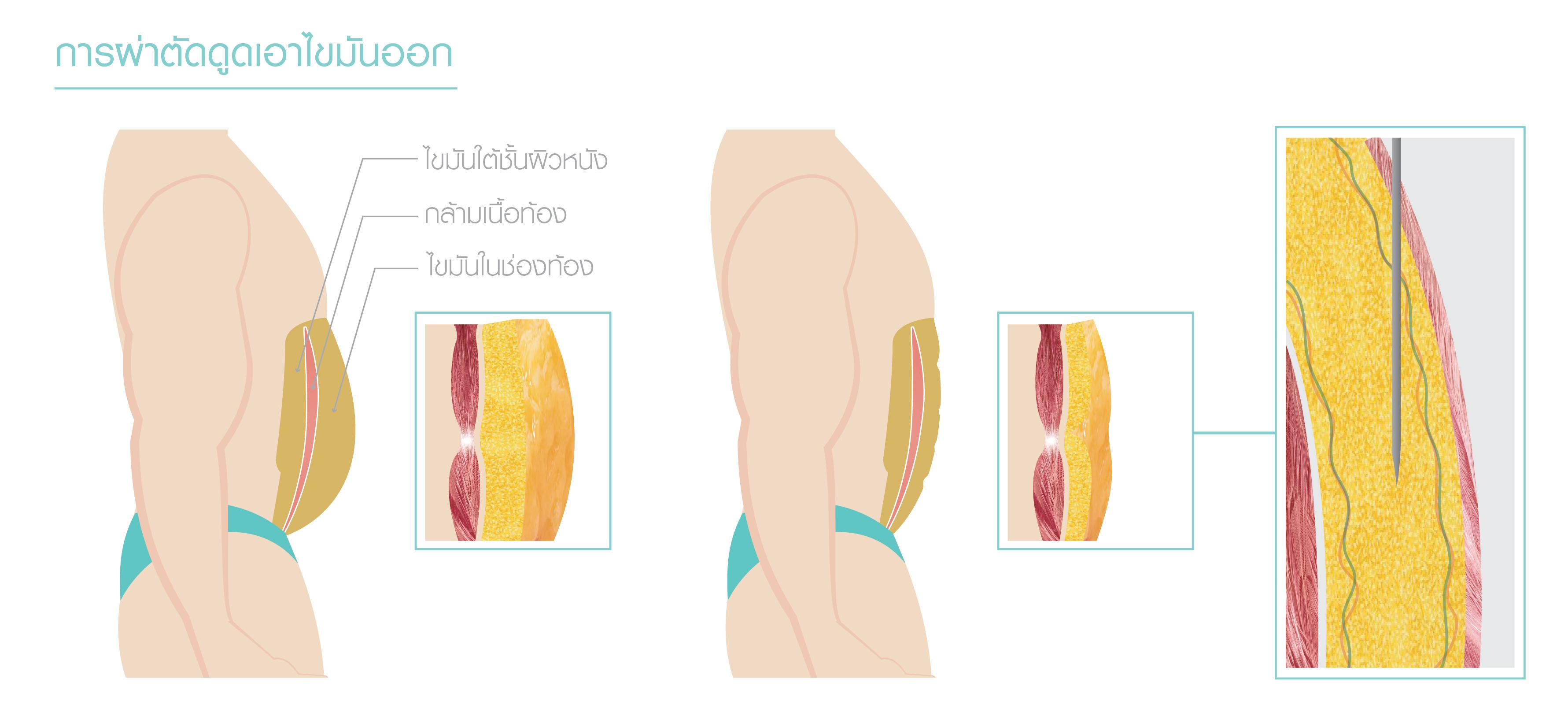 บริเวณไขมันช่องท้อง คือส่วนที่แพทย์ดูดไขมันออก เพื่อสร้าง Six Pack