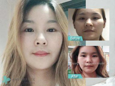 ศัลยกรรมลดโหนกแก้ม/ ตัดกราม ตัวช่วยหน้าเรียวไม่ต้องไปไกลถึงเกาหลี