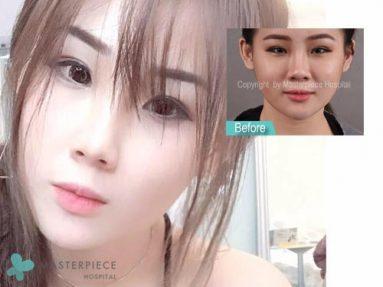 ทางลัดหน้าเรียวกระชับ กำจัดไขมัน ส่วนเกินกับโรงพยาบาลมาสเตอร์พีซ – คุณ Ng Shu Yan