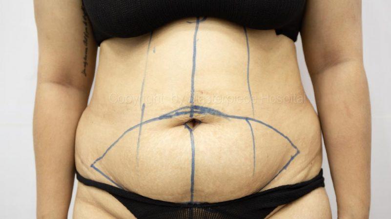 จบดราม่าหน้าท้องย้วย ด้วยวิธี ตัดแต่งหน้าท้อง (Tummy Tuck) – คุณดรีม (คุณแม่หลังคลอด)